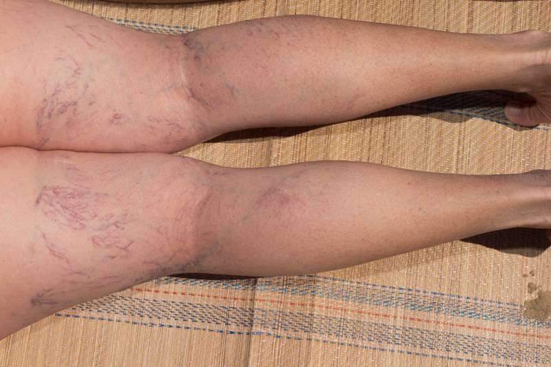 sudden spider veins
